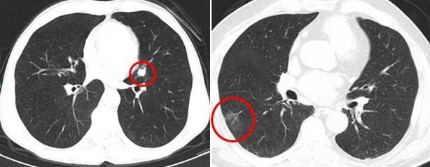 akciğer kanseri nedir