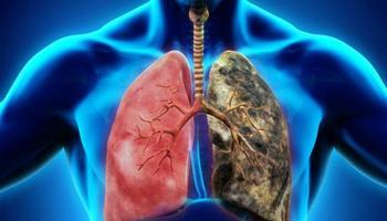 Akciğer Kanseri Hakkında Merak Edilenler