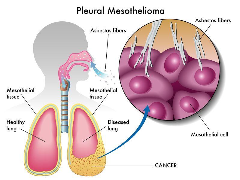 akciğer kanseri zarı